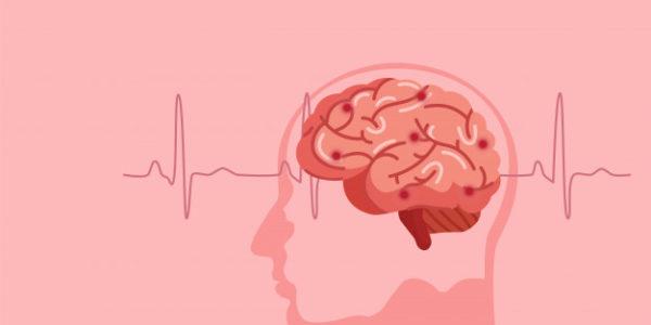 daño cerebral ilustración.