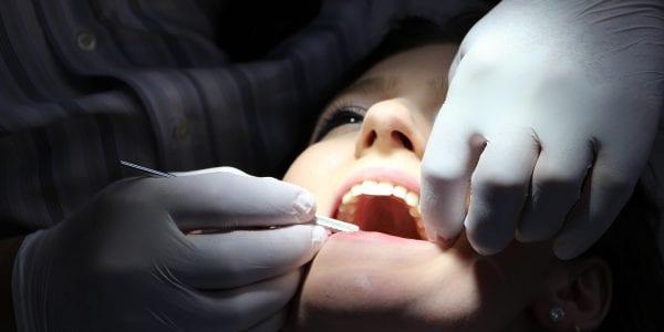 Implantes dentales clínica dental